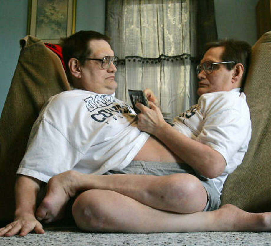 At 58, Ronnie, left, and Donnie Galyon are the oldest conjoined twins in the world, according to Guinness World Records. Photo: Jim Noelker, AP