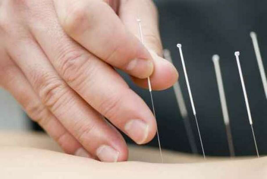 Acupuncture uses hair-thin needles to alleviate pain, among other things. Photo: Fotolia