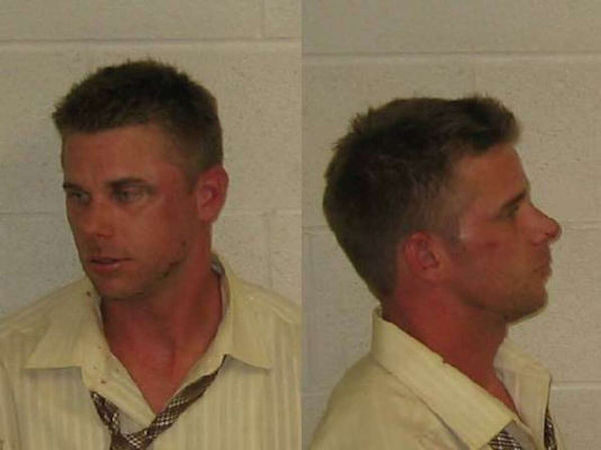 In his booking mug, Backe shows the effects of being hit in the face by a Galveston police officer.