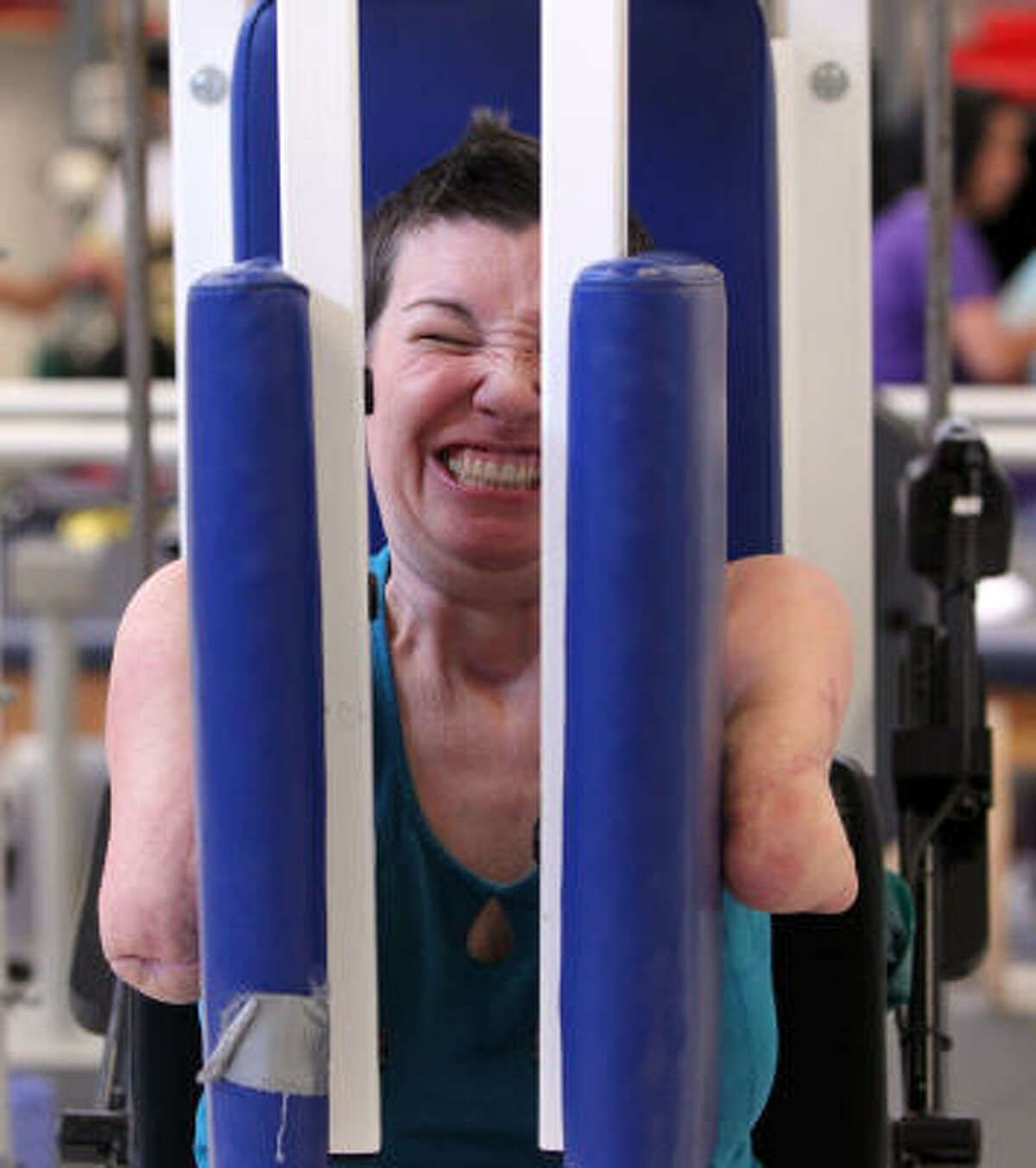 Hayes works to strengthen her shoulders and chest during physical therapy.