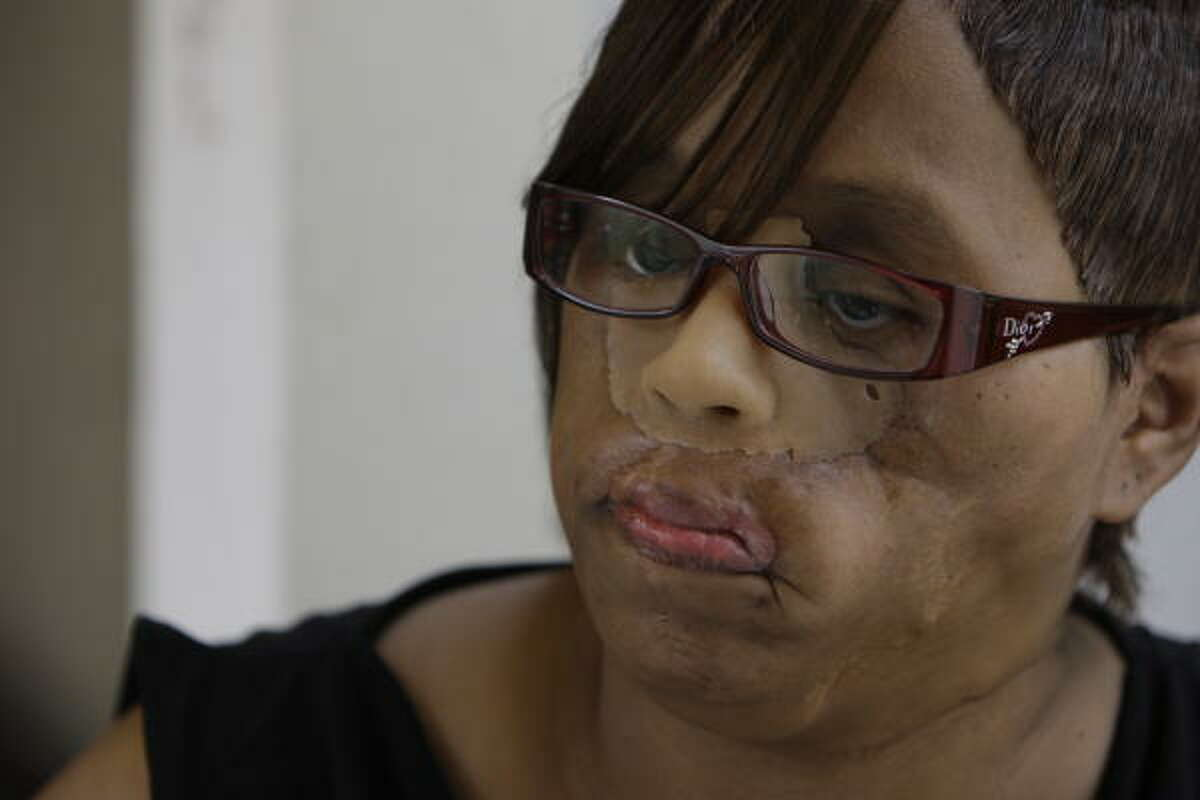 Carolyn Thomas of Waco survived being shot in the face in 2003. Her injuries were similar to those of Connie Culp, who recently received the nation's first face transplant.