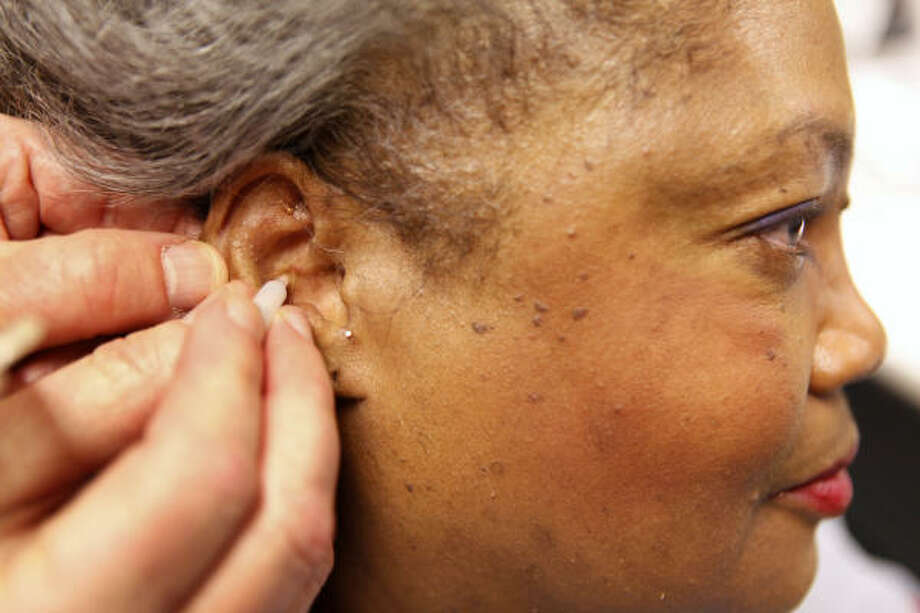Martha Lewis, 62, has a tiny gold acupuncture needle inserted in her ear by Air Force physician Col. Richard Niemtzow, at the acupuncture clinic on Andrews Air Force Base, Md. Photo: Jacquelyn Martin, AP