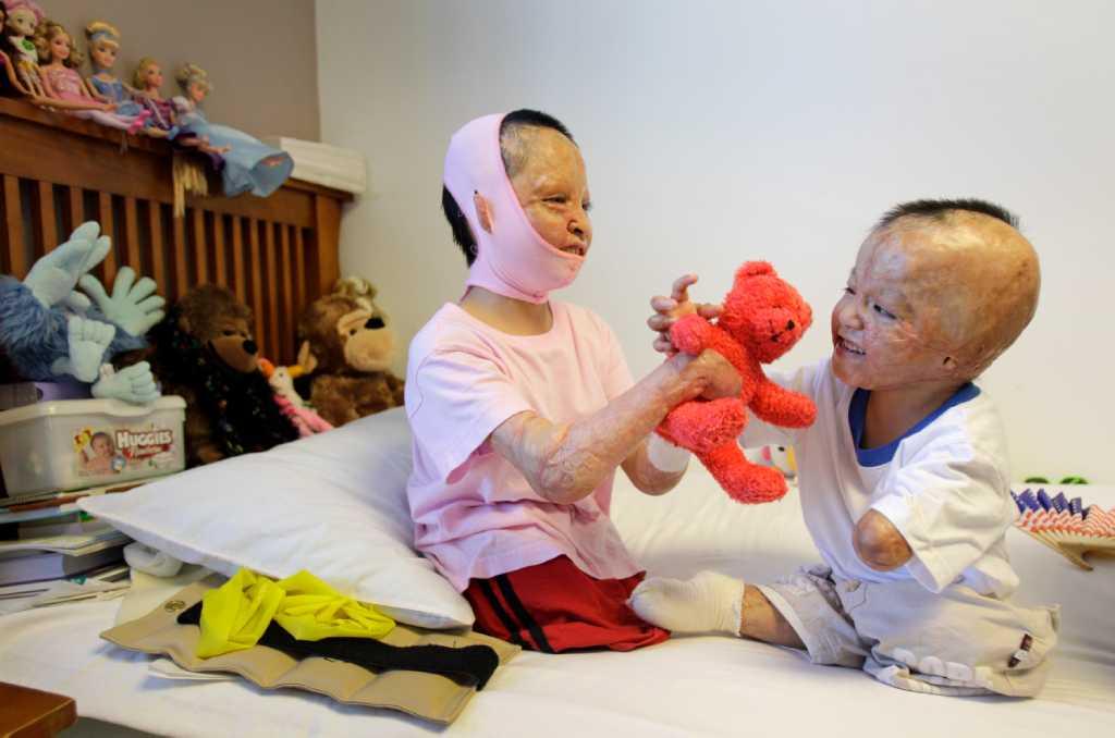 Galveston Surgeons Bring New Hope To Family Of Burned