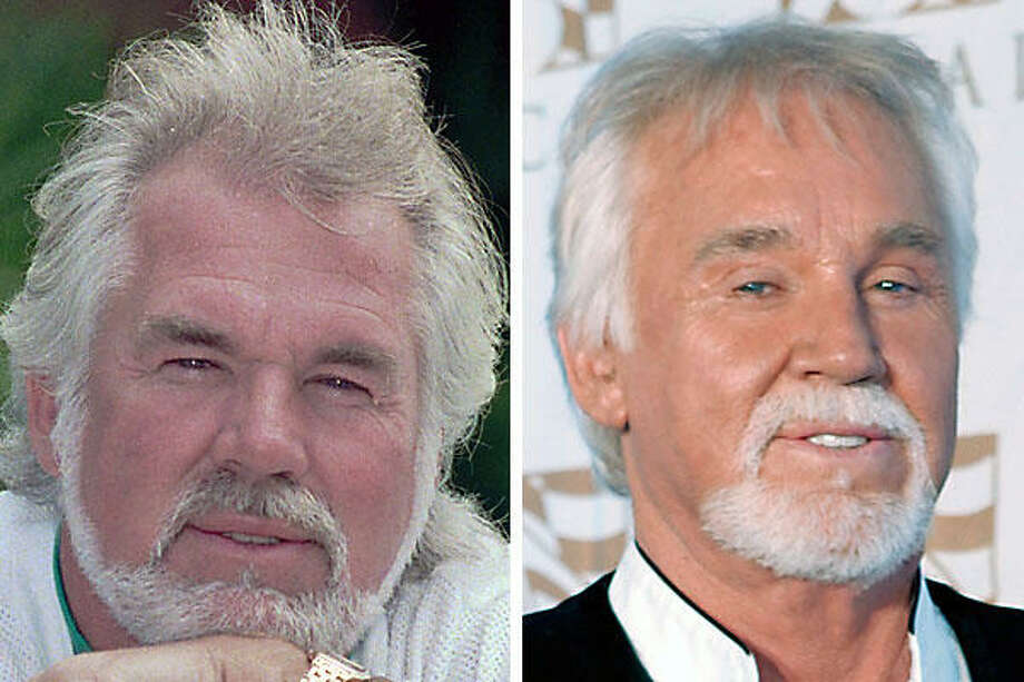 Country singer Kenny Rogers, shown left on May 10, 1989, looks quite a bit different on Oct. 15, 2007. Rogers reportedly is less than thrilled with the work around his eyes. Who can blame him? Photo: AP