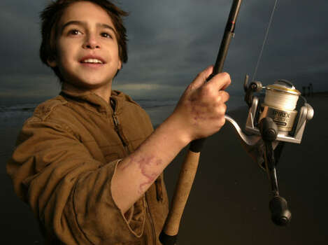 Aaron Perez, then 11, survived a shark attack that nearly cost him his right arm in 2004 in Freeport. He had been surf fishing with his dad and a family friend. Photo: Karen Warren, Houston Chronicle