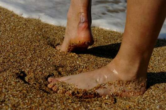 Debbie Salamone's ankle still bears the scars of her August 2004 shark attack. Photo: SARA A. FAJARDO, KRT