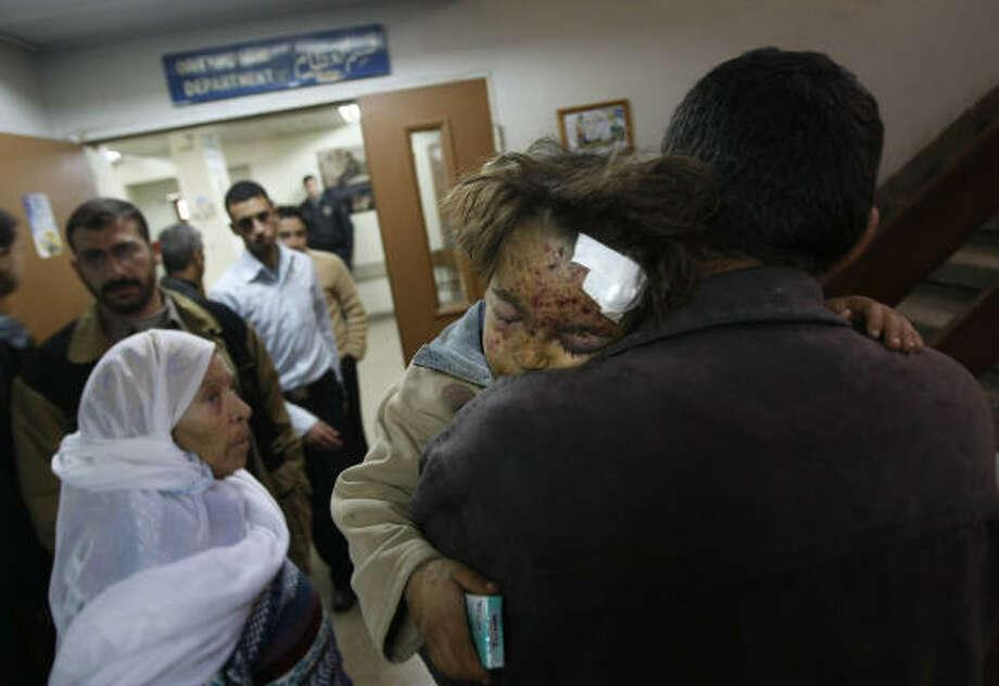 Un padre palestino lleva a su hija al hospital en Gaza. Photo: MAHMUD HAMS, AFP/Getty Images