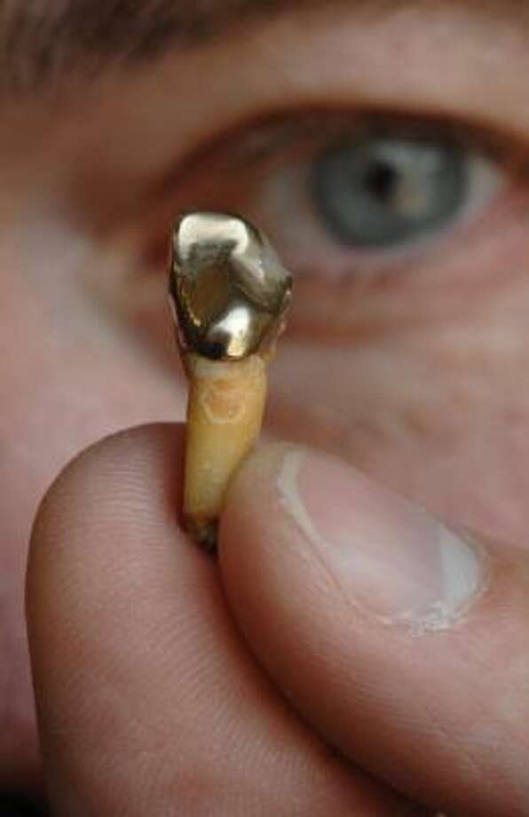 Scott Taber, owner of Taber Coins in Shrewsbury, Mass., holds a tooth with a gold crown he estimates is worth $15. Photo: JOSH REYNOLDS, ASSOCIATED PRESS
