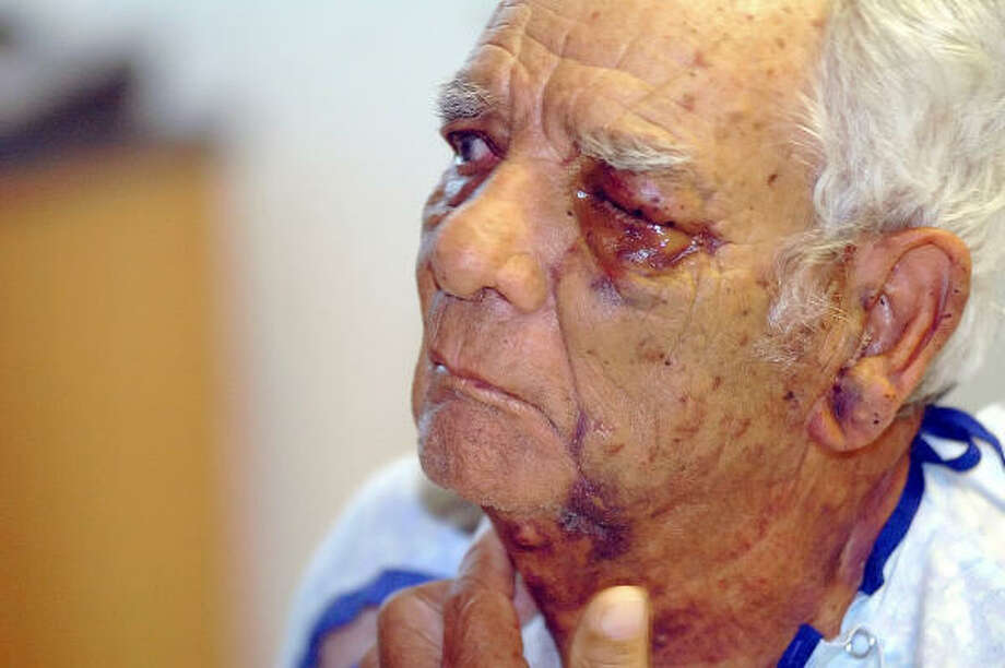An attack by about 1,000 Africanized bees has left Manuel Trevino's left eye swollen. Photo: Todd Yates, Corpus Christi Caller-Times