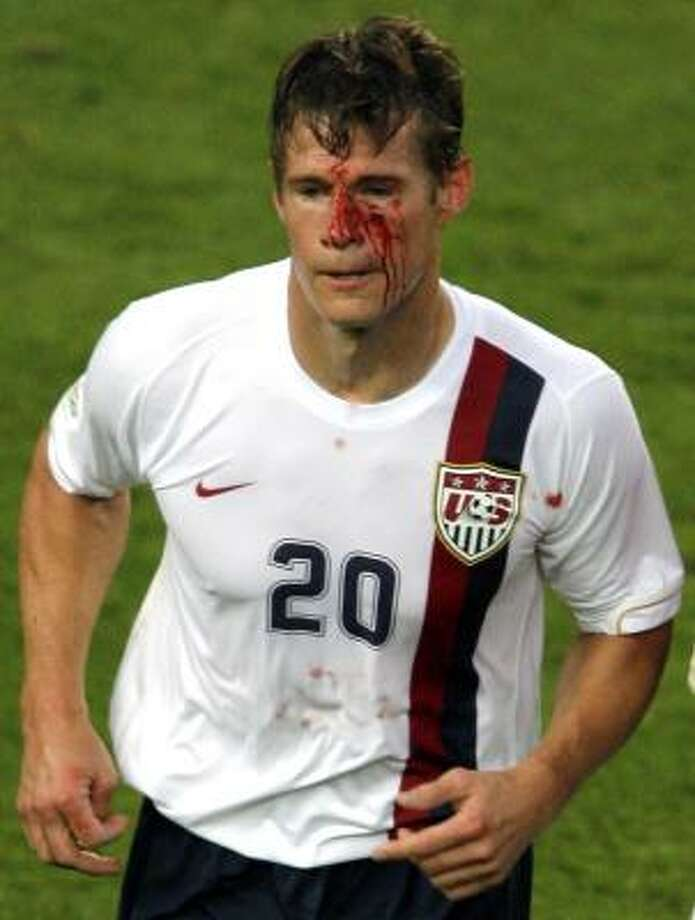 Brian McBride  response as his face was bloodied was to head to the sideline, take three stitches, wipe off the blood and change jerseys. He jogged back onto the field and played the entire 93 minutes. Photo: IVAN SEKRETAREV, ASSOCIATED PRESS
