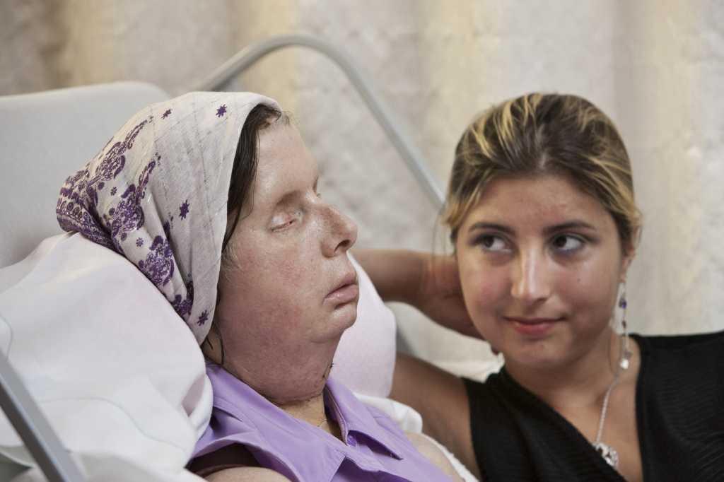 Charla Nash's family 'hopeful' because of new face