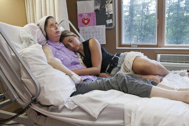 Charla Nash with her daughter Briana Nash in a rehabilitation center near Boston. Charla Nash lost her eyes, hands and much of her face on February 16, 2009 when attacked by a 200 pound chimpanzee at a friend's house in Stamford, Conn. In June 2011, at Brigham and Women's Hospital Department of Plastic Surgery's Charla underwent the groundbreaking fourth face transplant. Photo: NATAN DVIR / © 2011 POLARIS / NATAN DVIR / © 2011 POLARIS