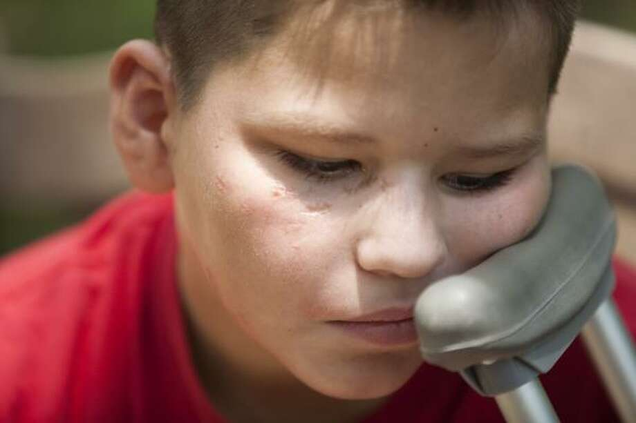 Mario Lopez, 10, was pushing his bike along a road in his rural Crosby subdivision on June 30 when two dogs attacked him. He said he was able to fend them off at first with his fists and his bike. Photo: Nick De La Torre, Chronicle