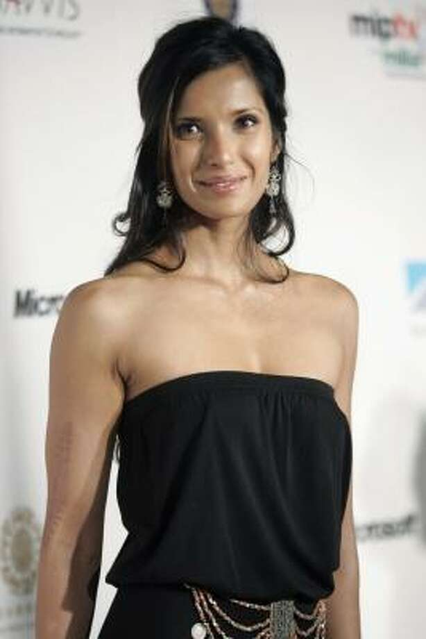 "Model and actress Padma Lakshmi appreciates the seven-inch scar she recieved after surviving a car crash at age 14. ""I love it because it makes me a person who has an interesting past, and it reminds me that I can survive any pain,"" Lakshmi told Allure magazine. Photo: KEITH BEDFORD, REUTERS"