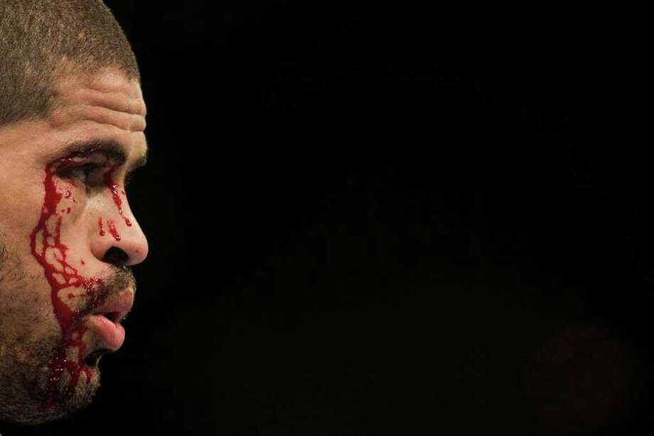 Blood streams down the face of Rousimar Palhares during his middleweight bout against Dan Miller. Photo: Felipe Dana, Associated Press / AP