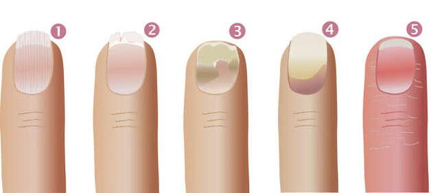 Панариция на пальце под ногтем лечение