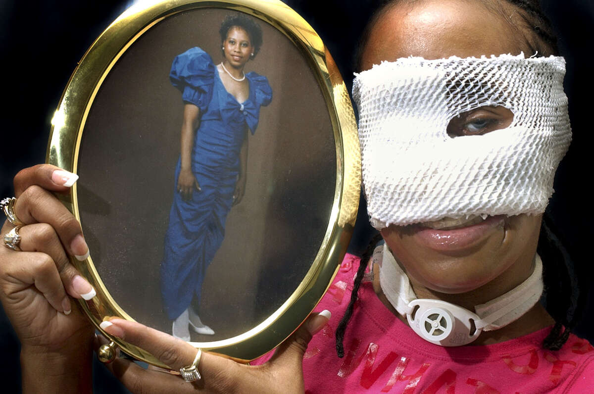Domestic violence victim Carolyn Thomas holds a photo of herself from high school. Thomas was shot in the face by her former boyfriend.