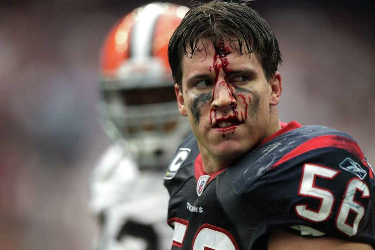 Houston Texans inside linebacker Brian Cushing (56) walks off the field with his face bloodied after an altercation with Cleveland Browns offensive guard Shawn Lauvao during the second quarter of an NFL football game at Reliant Stadium on Sunday, Nov. 6, 2011, in Houston.