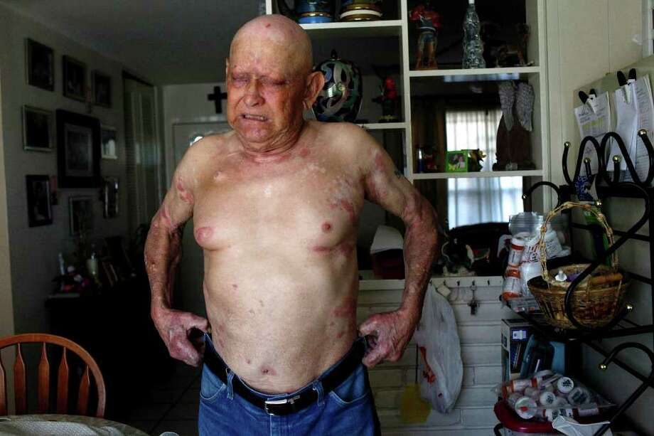 Frank Perez, who suffers from a type of T-cell Lymphoma, winces in pain as he pulls his jeans up over his the painful plaques  that cover his body, a probable result of the oral chemotherapy he takes daily at his home in San Antonio on Thursday, Nov. 3, 2011. The chemotherapy costs $11, 086 for 120 tablets and he takes 4 tablets every day with a meal. Lisa Krantz/lkrantz@express-news.net Photo: LISA KRANTZ, Lkrantz@express-news.net / lkrantz@express-news