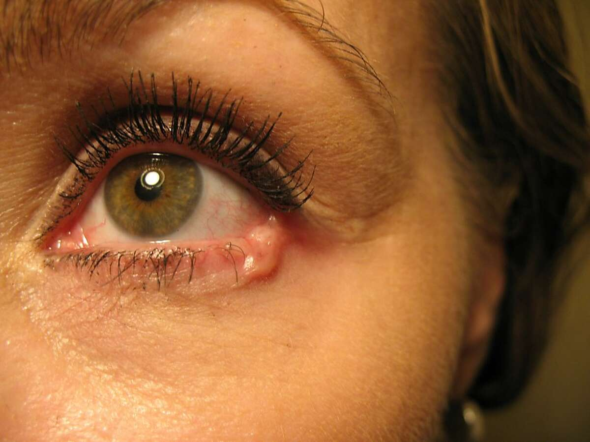An example of basal cell carcinoma in the lower eyelid.