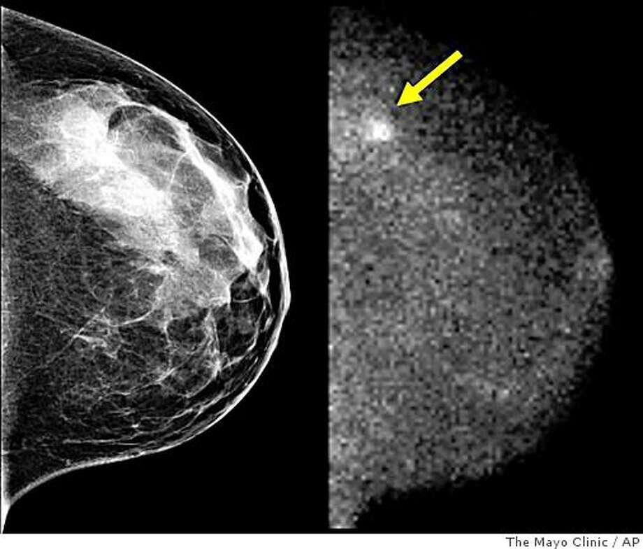 These undated images, provided by the Mayo Clinic in Minnesota, shows a standard mammogram, left, and  molecular breast imaging (MBI) from a study performed on a 45-year-old patient in the clinic's screening of women with dense breasts.  The mammogram was interpreted as being negative while the MBI image shows a cancer indicated by the arrow. (AP Photo/The Mayo Clinic) Photo: The Mayo Clinic, AP