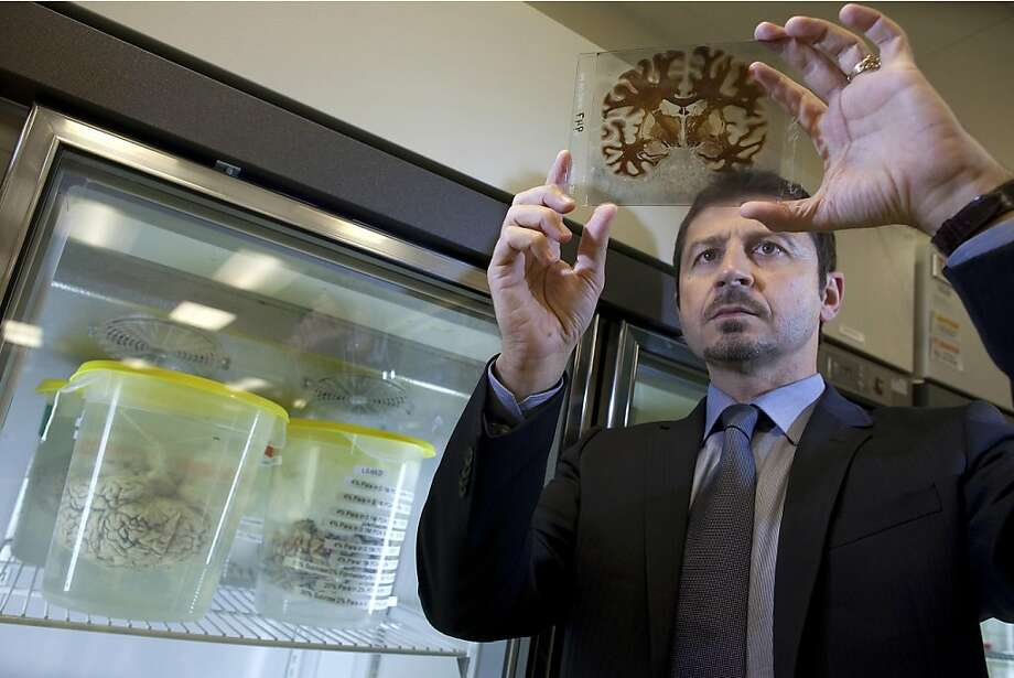 Dr. Jacopo Annese, director of The Brain Observatory at the University of California San Diego (USCD), examines a sliced section of a human brain at the UCSD Radiology Imaging Laboratory in San Diego, California, U.S., on Tuesday, April 19, 2011. The 6-year-old center is creating new technologies and strategies to help scientists study how personality, memories, emotions and physical traits are reflected in the brain's chemical and electrical signaling system. Success depends on the depth of information gleaned from donors, Annese says. Photographer: David Paul Morris/The Brain Observatory/Bloomberg  EDITOR'S NOTE: IMAGE ONLY AVAILABLE FOR USE IN CONTEXT OF BLOOMBERG NEWS STORY 'BRAIN COLLECTOR SEEKS TRUMP-LIKE DONORS TO PROBE HOW PERSONALITY IS FORMED' BY ELIZABETH LOPATTO. EDITORIAL USE ONLY. NO SALES. Photo: David Paul Morris, Bloomberg