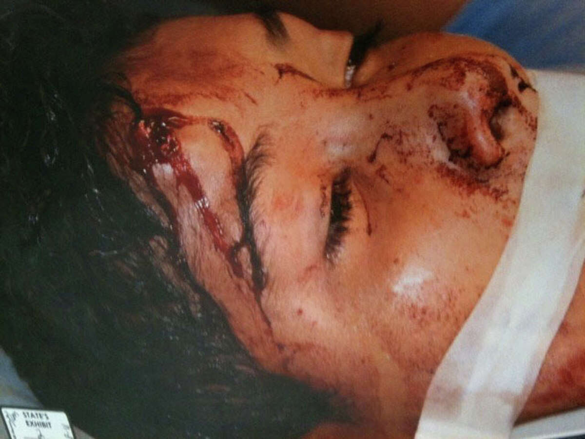 Ivan Perez after he was shot while sitting in a car in August, 2010. photo provided by Beaumont Police Department