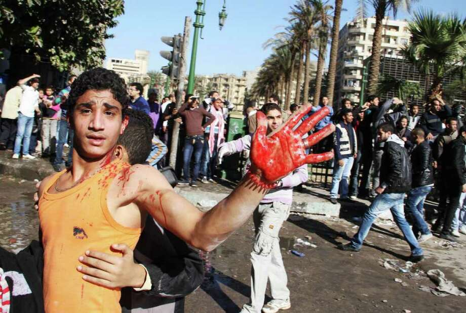 An Egyptian young protester brandishes blood on his hands, near Tahrir Square in Cairo, Egypt, Sunday, Dec. 18, 2011. Troops and protesters are clashing for the third straight day in Cairo, pelting each other with rocks in skirmishes near parliament in the heart of the Egyptian capital. (AP Photo) Photo: STR / AP