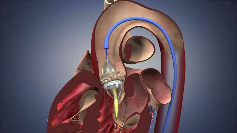 Illustration showing an Edwards SAPIEN Transcatheter Aortic Heart Valve being inserted into a heart. (Edwards Lifesciences)