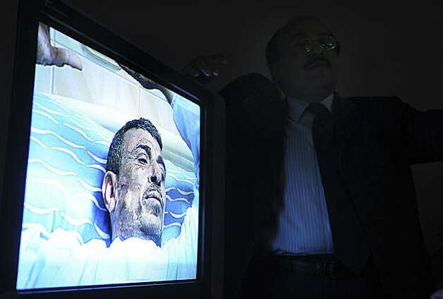 A monitor displays video of 48-year old Abdou Abdel-Monaam Hamadah,  at a Cairo hospital, in Egypt, Monday, Jan. 17, 2011, as unidentified plastic surgeon, right, talks about the medical case.  Hamadah apparently set himself on fire Monday outside the country's parliament in a personal protest, but the self-immolation was thwarted when security officials and passing motorists used fire extinguishers to quickly put out the blaze engulfing the man. Photo: Str, AP