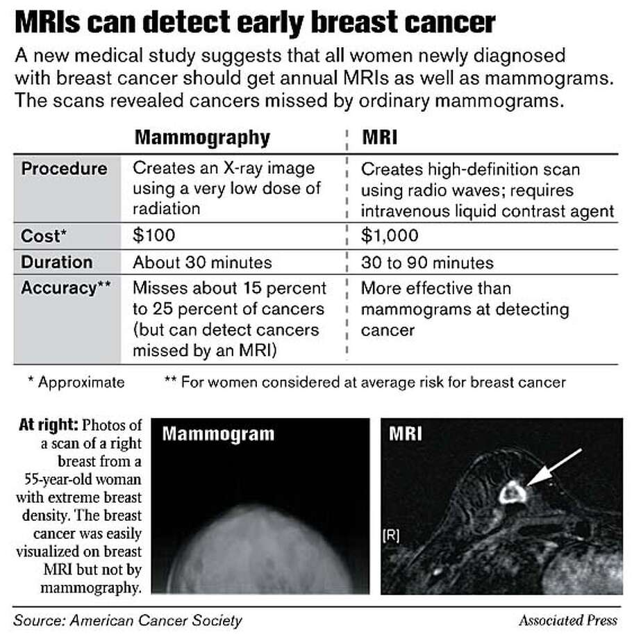 MRIs can detect early breast cancer. Associated Press Graphic