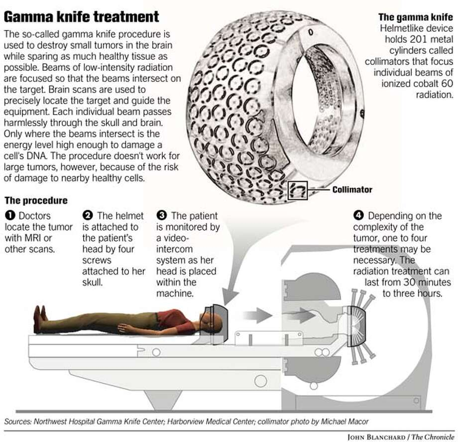 Gamma knife treatment. Chronicle graphic by John Blanchard