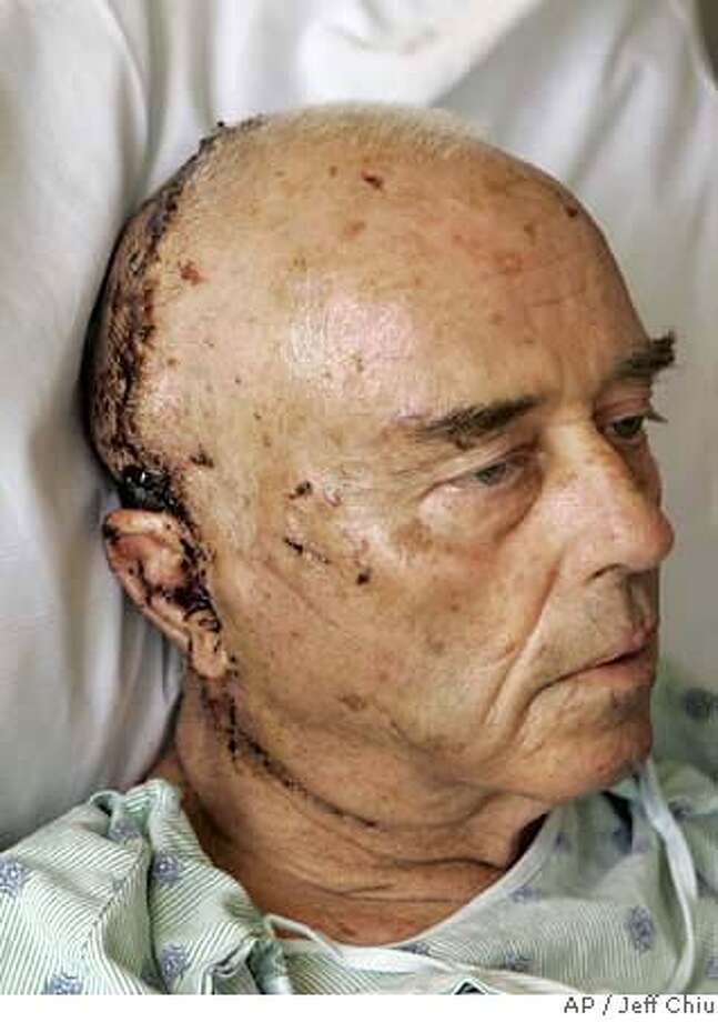 Jim Hamm is photographed in his room at California Pacific Medical Center Davies Campus in San Francisco, Tuesday, Feb. 13, 2007. Hamm, 70, was attacked by a female mountain lion while he and his wife were hiking in Prairie Creek Redwoods State Park, about 50 miles north of Eureka on Jan. 24, 2007. (AP Photo/Jeff Chiu, Pool) Photo: Jeff Chiu
