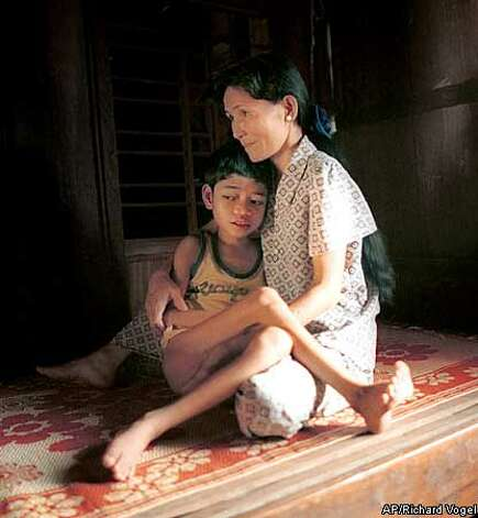 FOR USE WITH FEATURE TITLED 12-year-old Pham Quoc Huy is comforted by his mother on a bamboo cot in their home, Feb. 19, 2000, near his village of Dong Son, in the A Luoi valley of the Central Highlands, Vietnam. Pham is suffering from what his parents say are the effects of the jungle defolinat, Agent Orange, used heavily in the region by the U.S. armed forces during the Vietnam War. (AP Photo/Richard Vogel) Photo: RICHARD VOGEL
