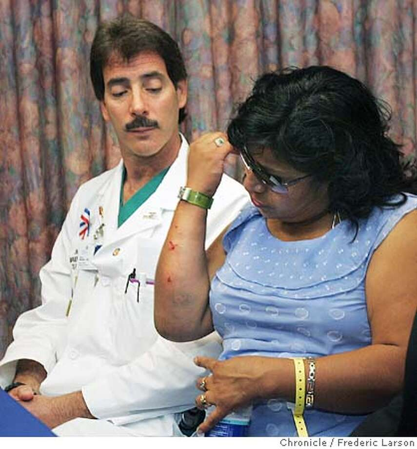 PITBULLS052_fl.jpg Norma Rojas, the mother of 8-year-old Annette who was mauled by a pit bull in Santa Rosa, shows evidence of her bites by the dog to Dr. Gary Mishkin, a emergency room doctor during a press conference at Santa Rosa Memorial Hospital, Santa Rosa.  6/24/05 Santa Rosa CA Frederic Larson The San Francisco Chronicle Photo: Frederic Larson