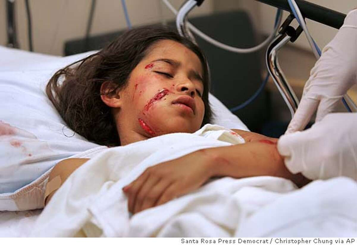 Annette Rojas, 8, rests under sedation at the Santa Rosa Memorial Hospital emergency room while nurses irrigate her wounds caused by a in Santa Rosa, Wednesday, June 22, 2005. Witnesses say the dog locked on to Annett's face and wouldn't let go. Some people ran to the girl's aid and battered the dog with a crowbar, a hoe and finally some pool cues before it released. Then it went after the mother, Norma Flores, biting her on the arm. (AP Photo/Santa Rosa Press Democrat, Christopher Chung)