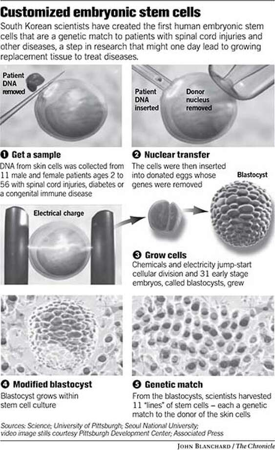 Customized Embryonic Stem Cells. Chronicle graphic by John Blanchard