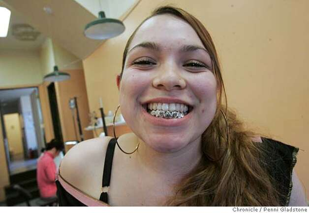 GOLDTEETH131PG.JPG Mica Castro shows off her gold teeth.  High school girls get gold teeth for their prom from the Gold Tooth Master. The San Francisco Chronicle, Penni Gladstone  Photo taken on 4/15/05, in Oakland, Photo: Penni Gladstone