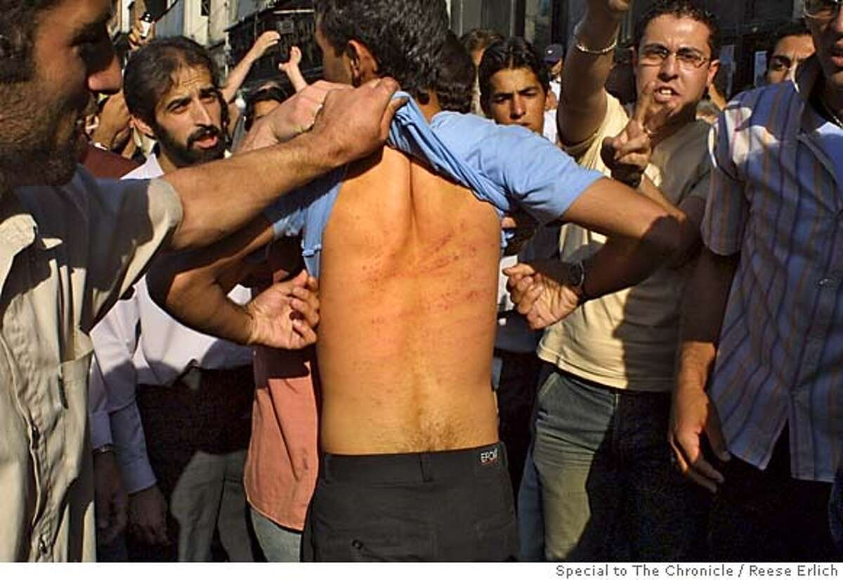Baton injuries at women's rights demonstration at Tehran University, Tehran, Iran. June 2005. photo by Reese Erlich ONE TIME USE ONLY