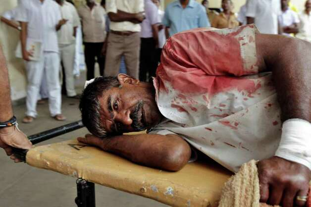 An injured inmate of the Sri Lankan prison is taken for treatment at a hospital in Colombo, Sr
