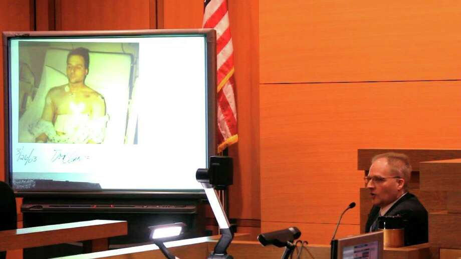 Paul Christos of White Plains testifies during the murder trial of Sheila Davalloo before Superior Court Judge Richard Comerford at the Connecticut Superior Court building in Stamford, Conn. Jan. 24, 2012. Christos is Davalloo's ex-husband. The photo on the screen shows Christos following open-heart surgery after he was allegedly stabbed repeatedly by Davalloo. Photo: Matthew Brown/The Journal News / The Journal News