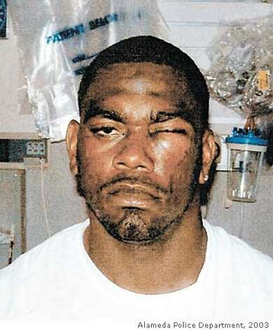 ** FILE ** In this photo released by the Alameda Police Department shows Oakland Raiders tight end Marcus Williams after police say he was attacked by teammate Bill Romanowski in the left eye in this August 2003 file photo. Williams' lawyers are preparing for opening statement for a trial in Oakland on Tuesday, March 1, 2005 against Romanowski. (AP Photo/Alameda Police Department)
