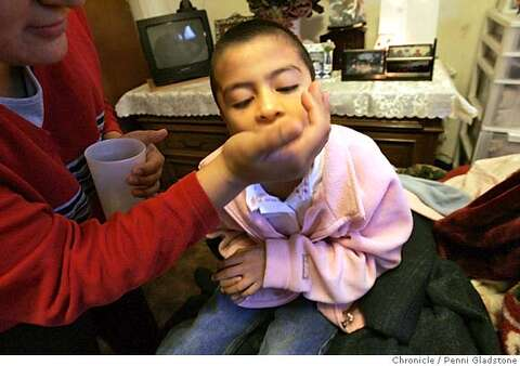 Girl with epilepsy on mend / After brain surgery, she has fewer big