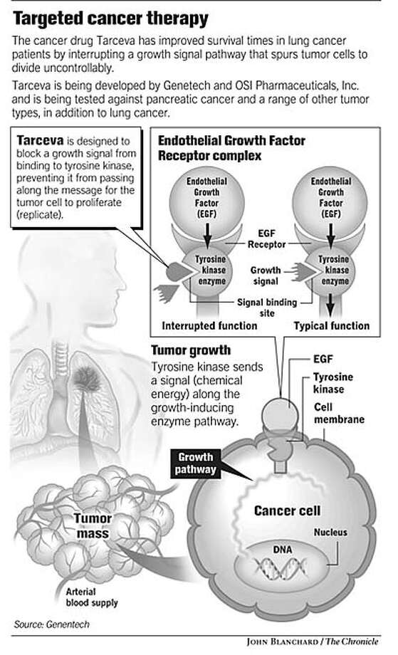 Targeted Cancer Therapy. Chronicle graphic by John Blanchard Photo: John Blanchard