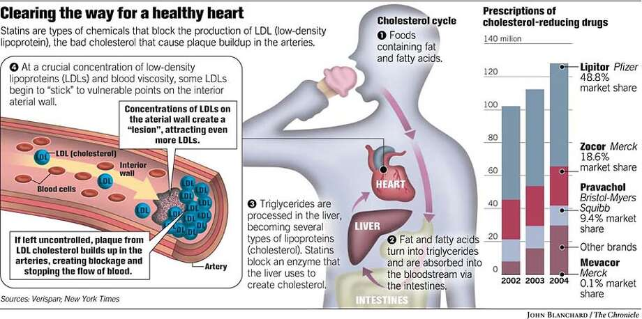 Clearing the Way for A Healthy Heart. Chronicle graphic by John Blanchard Photo: John Blanchard