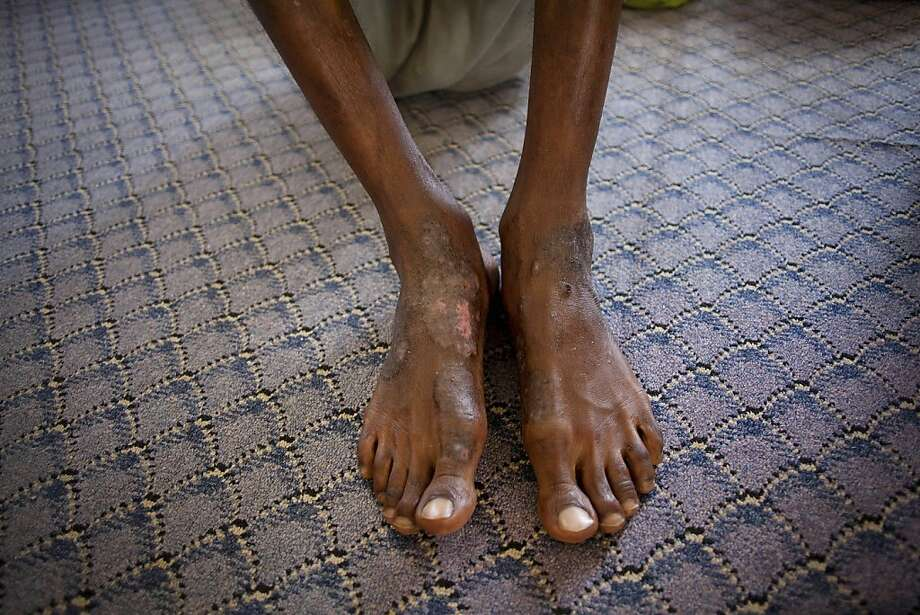 FILE - In this Sept. 22, 2011 file photo, a man suspected of being a Gadhafi loyalist shows wounds on his feet at a detention facility in Misrata, Libya. Doctors Without Borders has suspended its work in prisons the Libyan city of Misrata because it said torture was so rampant that some detainees were brought for care only to make them fit for further interrogation, the group said Thursday, Jan. 26, 2012. (AP Photo/Manu Brabo, File) Photo: Manu Brabo, Associated Press
