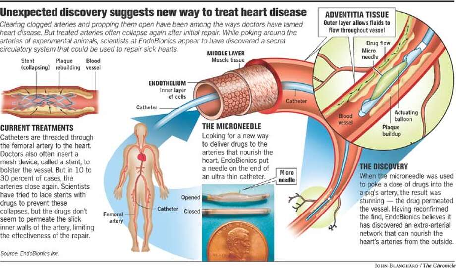Unexpected Discovery Suggests New Way to Treat Heart Disease. Chronicle graphic by John Blanchard