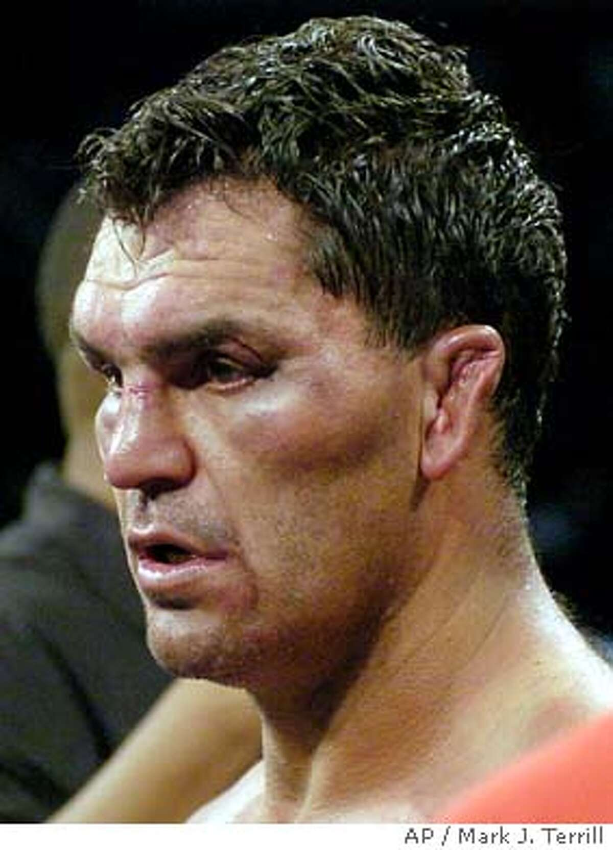 Corrie Sanders walks away with an injured ear after losing his 12-round WBC heavyweight championship bout against Vitali Klitschko in Los Angeles, Saturday, April 24, 2004. Klitschko won the fight by TKO in the eighth round. (AP Photo/Mark J. Terrill)