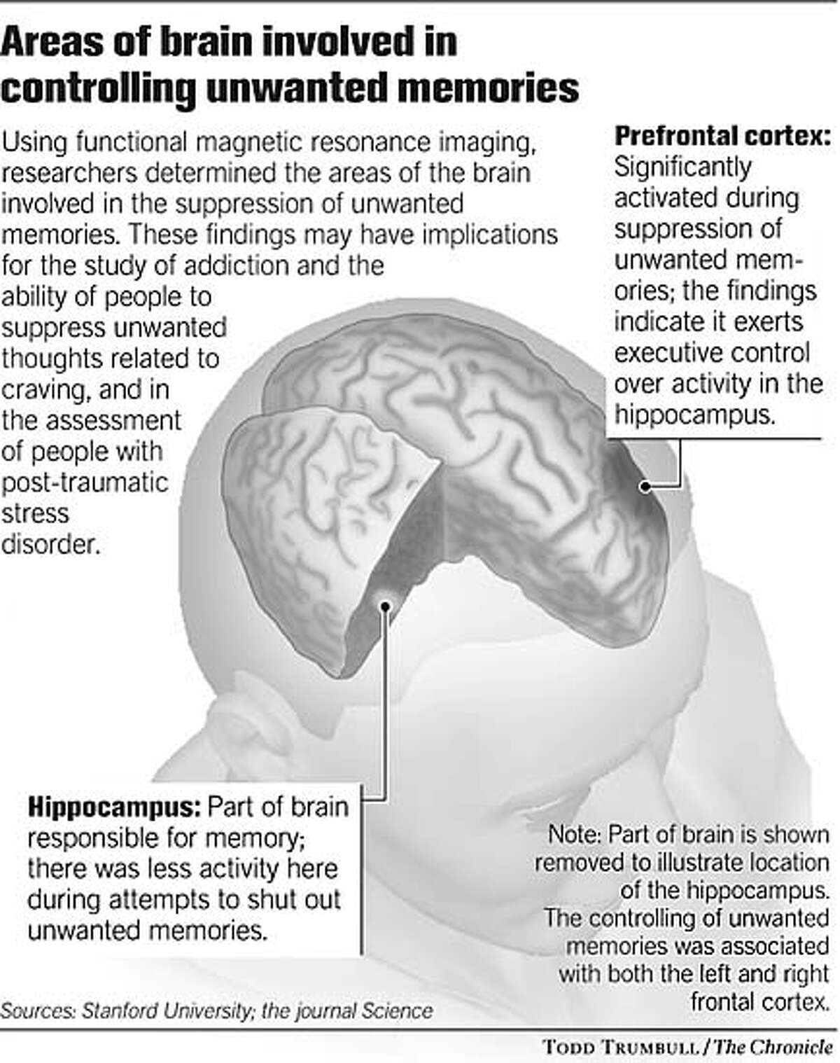 Areas of brain involved in controlling unwanted memories. Chronicle graphic by Todd Trumbull