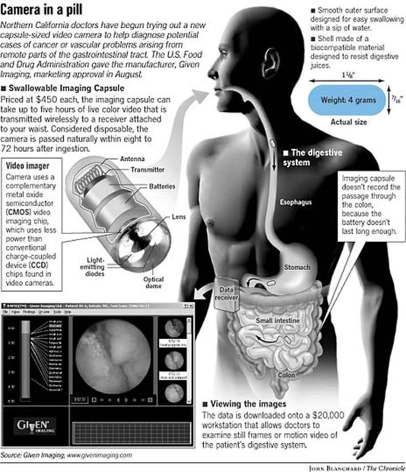 Camera in a Pill. Chronicle Graphic by John Blanchard